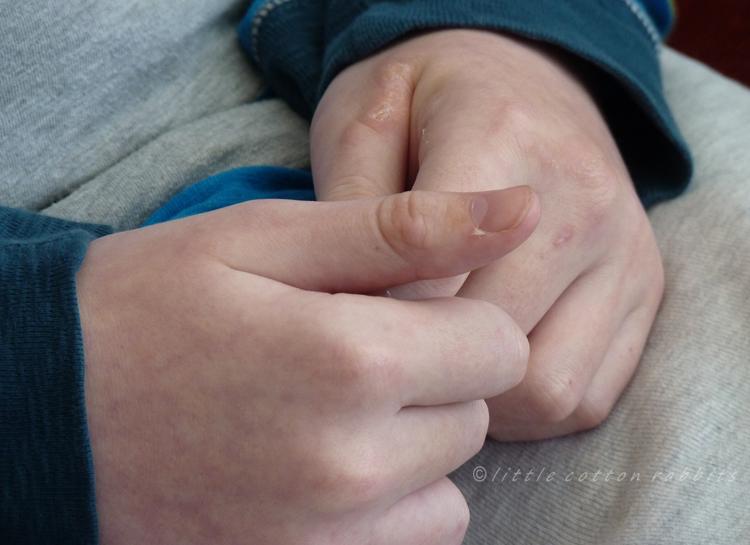 Tobys hands